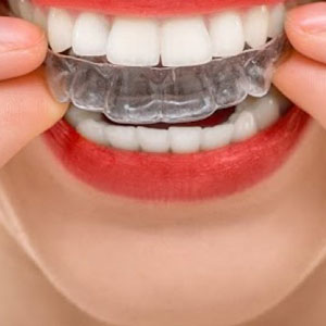 Cropped Photo of Invisalign in Jeffersonville, IN by Dr. Michael Kirchner, Kirchner Dental